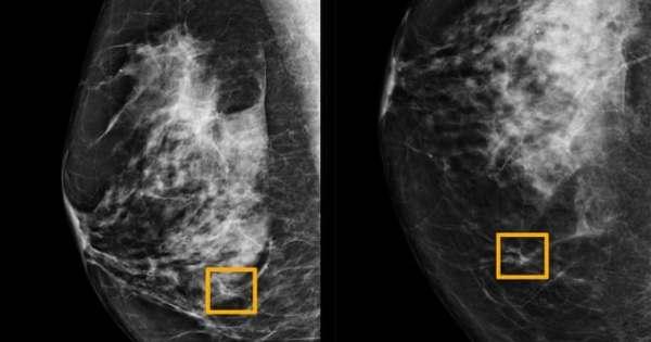göğüs kanseri yapay zeka ile daha iyi teşhis edilebilecek